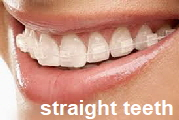 straight teeth