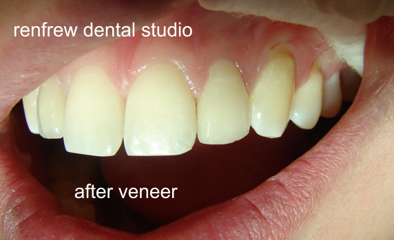 Renfrew Dental Studio - Veneers